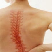 HERNIA de disc: cauzele apariției, tratament medicamentos, intervenții chirurgicale